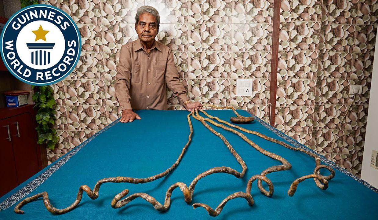 Des ongles vieux de 66 ans coupés